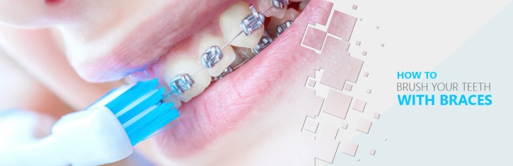Tips To Brush Your Teeth With Braces For Fresh Breath