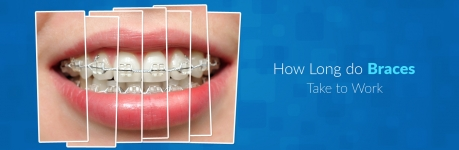 How Long do Braces Take to Work